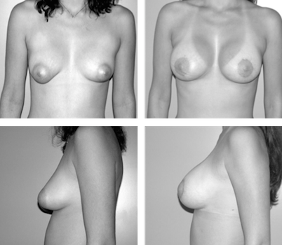 Tuberous breasts