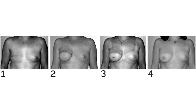 Reconstruction du mamelon