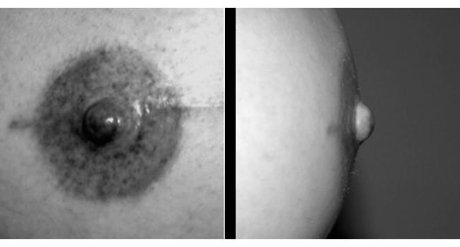 Nipple reconstruction